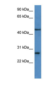 FGFBP2 antibody LS-C135832 Western blot of HeLa lysate.  This image was taken for the unconjugated form of this product. Other forms have not been tested.