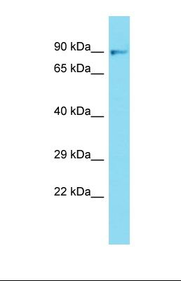 Western blot of Mouse Liver. Fgfr1 antibody dilution 1.0 ug/ml.  This image was taken for the unconjugated form of this product. Other forms have not been tested.