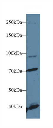 Western Blot; Sample: Human Hela cell lysate; Primary Ab: 1µg/ml Rabbit Anti-Human FGFR2 Antibody Second Ab: 0.2µg/mL HRP-Linked Caprine Anti-Rabbit IgG Polyclonal Antibody