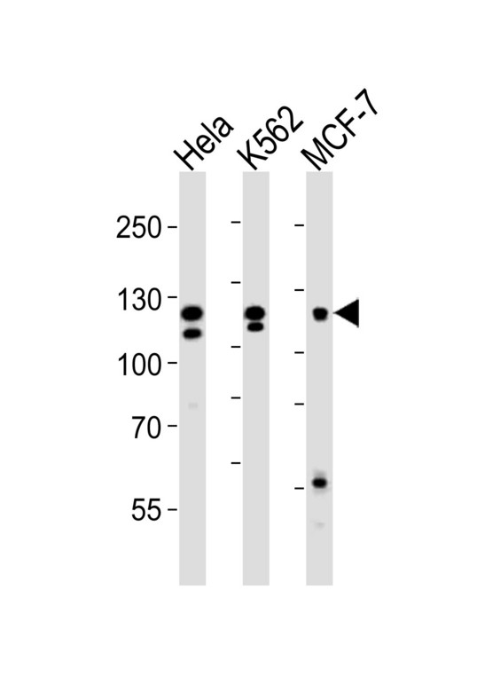 Western blot of lysates from HeLa, K562, MCF-7 cell line (from left to right), using FGFR2 Antibody R22. Antibody was diluted at 1:1000 at each lane. A goat anti-rabbit IgG H&L (HRP) at 1:10000 dilution was used as the secondary antibody. Lysates at 35ug per lane.