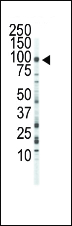 Western blot of anti-FGFR3 antibody in Jurkat cell lysate. FGFR3 (Arrow) was detected using purified antibody. Secondary HRP-anti-rabbit was used for signal visualization with chemiluminescence.