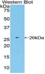 Western blot of recombinant FGFR4.  This image was taken for the unconjugated form of this product. Other forms have not been tested.