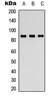 Western blot analysis of FGFR4 expression in Raji (A); HEK293T (B); NIH3T3 (C) whole cell lysates.