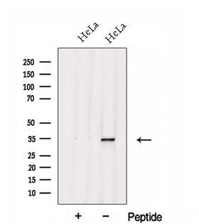 FGL1 / Hepassocin Antibody - Western blot analysis of extracts of HeLa cells using FGL1 antibody. The lane on the left was treated with blocking peptide.