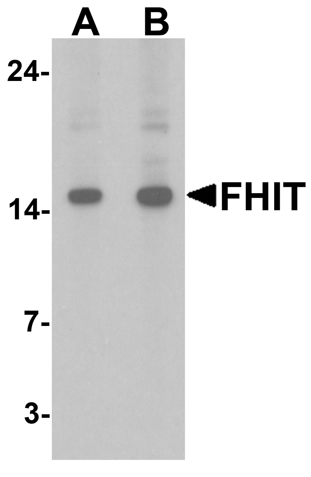 Western blot analysis of FHIT in HeLa cell lysate with FHIT antibody at (A) 1 and (B) 2 ug/ml.