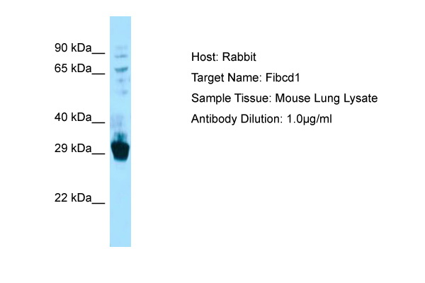 FIBCD1 Antibody -  This image was taken for the unconjugated form of this product. Other forms have not been tested.