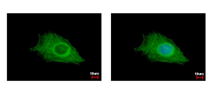 FIG4 antibody detects FIG4 protein at cytoplasm by immunofluorescent analysis. HeLa cells were fixed in ice-cold MeOH for 5 min. FIG4 protein stained by FIG4 antibody diluted at 1:500.