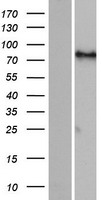 FIGN / Fidgetin Protein - Western validation with an anti-DDK antibody * L: Control HEK293 lysate R: Over-expression lysate
