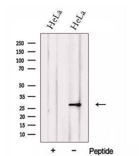 FKBP14 Antibody - Western blot analysis of extracts of HeLa cells using FKBP14 antibody. The lane on the left was treated with blocking peptide.