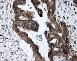 IHC of paraffin-embedded Adenocarcinoma of colon tissue using anti-FKBP1A mouse monoclonal antibody. (Dilution 1:50).