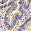 Immunohistochemistry of paraffin-embedded human rectal cancer using FKBP1A antibody at dilution of 1:200 (x400 lens)