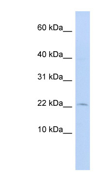 FKBP2 antibody Western blot of 721_B cell lysate. This image was taken for the unconjugated form of this product. Other forms have not been tested.