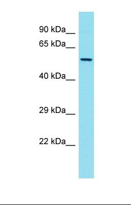 Western blot of Human Thymus Tumor. FKBP5 antibody dilution 1.0 ug/ml.  This image was taken for the unconjugated form of this product. Other forms have not been tested.