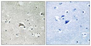 IHC of paraffin-embedded human brain tissue, using VEGFR1 (Ab-1048) Antibody. The picture on the right is treated with the synthesized peptide.