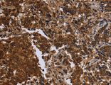 Immunohistochemistry of paraffin-embedded Human brain using FMN2 Polyclonal Antibody at dilution of 1:30.