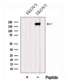 FMN2 / Formin 2 Antibody - Western blot analysis of extracts of SK-OV3 cells using FMN2 antibody. The lane on the left was treated with blocking peptide.