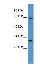 FMO4 Antibody - FMO4 antibody Western blot of Rat Brain lysate. This image was taken for the unconjugated form of this product. Other forms have not been tested.