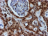 IHC of paraffin-embedded Carcinoma of Human pancreas tissue using anti-FMR1 mouse monoclonal antibody.