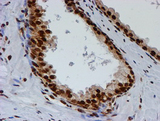 IHC of paraffin-embedded Carcinoma of Human prostate tissue using anti-FMR1 mouse monoclonal antibody.