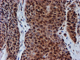 IHC of paraffin-embedded Carcinoma of Human bladder tissue using anti-FMR1 mouse monoclonal antibody.