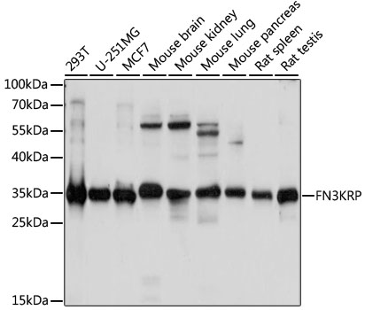 FN3KL / FN3KRP Antibody - Western blot analysis of extracts of various cell lines, using FN3KRP antibody at 1:1000 dilution. The secondary antibody used was an HRP Goat Anti-Rabbit IgG (H+L) at 1:10000 dilution. Lysates were loaded 25ug per lane and 3% nonfat dry milk in TBST was used for blocking. An ECL Kit was used for detection and the exposure time was 5s.