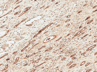 FNIP1 Antibody - Immunohistochemistry analysis using Rabbit Anti-FNP1 Polyclonal Antibody. Tissue: Renal Cell Carcinoma. Species: Human. Fixation: Formalin Fixed Paraffin-Embedded. Primary Antibody: Rabbit Anti-FNP1 Polyclonal Antibody  at 1:50 for 30 min at RT. Counterstain: Hematoxylin. Magnification: 10X. HRP-DAB Detection.