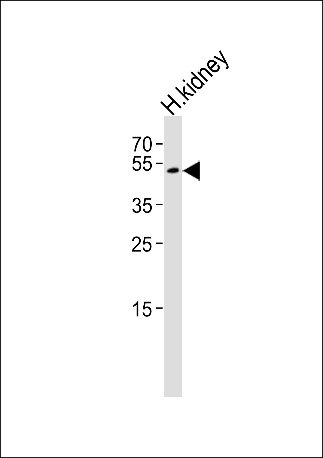 Western blot of lysate from human kidney tissue lysate, using PSMAL Antibody. Antibody was diluted at 1:1000. A goat anti-rabbit IgG H&L (HRP) at 1:10000 dilution was used as the secondary antibody. Lysate at 35ug.