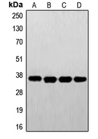 Western blot analysis of FR alpha expression in A431 (A); HeLa (B); HepG2 (C); JAR (D) whole cell lysates.
