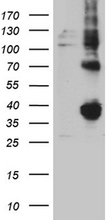FOLR3 Antibody - HEK293T cells were transfected with the pCMV6-ENTRY control. (Left lane) or pCMV6-ENTRY FOLR3. (Right lane) cDNA for 48 hrs and lysed. Equivalent amounts of cell lysates. (5 ug per lane) were separated by SDS-PAGE and immunoblotted with anti-FOLR3. (1:2000)