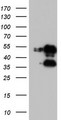 HEK293T cells were transfected with the pCMV6-ENTRY control (Left lane) or pCMV6-ENTRY FOSB (Right lane) cDNA for 48 hrs and lysed. Equivalent amounts of cell lysates (5 ug per lane) were separated by SDS-PAGE and immunoblotted with anti-FOSB.