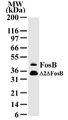 Western blot of FosB in HeLa cell lysate with anti-FosB McAb antibody. A protein band with an approximate molecular weight of 46 kD is detected.