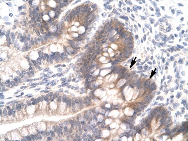FOSL2 / FRA2 antibody ARP31277_P050-NP_005244-FOSL2 (FOS-like antigen 2) Antibody was used in IHC to stain formalin-fixed, paraffin-embedded human intestine.  This image was taken for the unconjugated form of this product. Other forms have not been tested.