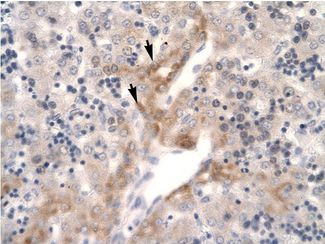 FOSL2 / FRA2 antibody ARP31277_P050-NP_005244-FOSL2 (FOS-like antigen 2) Antibody was used in IHC to stain formalin-fixed, paraffin-embedded human liver.  This image was taken for the unconjugated form of this product. Other forms have not been tested.
