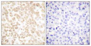IHC of paraffin-embedded human breast carcinoma tissue, using Fra-2 Antibody. The picture on the right is treated with the synthesized peptide.