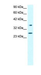 FOXA3 antibody Western blot of Jurkat lysate. This image was taken for the unconjugated form of this product. Other forms have not been tested.