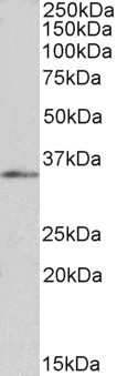 FOXB1 Antibody - Goat Anti-FOXB1 / FKH5 Antibody (1µg/ml) staining of HepG2 nuclear lysate (35µg protein in RIPA buffer). Primary incubation was 1 hour. Detected by chemiluminescencence
