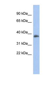 FOXB1 antibody LS-C110079 Western blot of Fetal Spleen lysate.  This image was taken for the unconjugated form of this product. Other forms have not been tested.