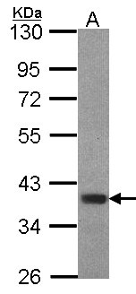 FOXB1 Antibody - Sample (30 ug of whole cell lysate). A: Hep G2. 10% SDS PAGE. FOXB1 antibody diluted at 1:1000.