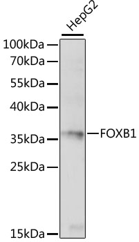 FOXB1 Antibody - Western blot analysis of extracts of HepG2 cells, using FOXB1 antibody at 1:1000 dilution. The secondary antibody used was an HRP Goat Anti-Rabbit IgG (H+L) at 1:10000 dilution. Lysates were loaded 25ug per lane and 3% nonfat dry milk in TBST was used for blocking. An ECL Kit was used for detection and the exposure time was 30s.