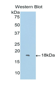 Western blot of recombinant FOXC1.  This image was taken for the unconjugated form of this product. Other forms have not been tested.