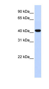 FOXD1 Antibody - FOXD1 antibody Western blot of Fetal Lung lysate. This image was taken for the unconjugated form of this product. Other forms have not been tested.