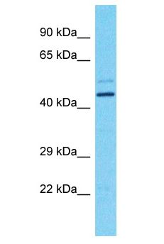 FOXD4L1 / FOXD5 antibody Western Blot of Fetal Brain. Antibody dilution: 1 ug/ml.  This image was taken for the unconjugated form of this product. Other forms have not been tested.