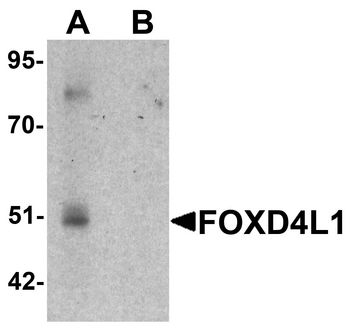 FOXD4L1 / FOXD5 Antibody - Western blot analysis of FOXD4L1 in A-20 cell lysate with FOXD4L1 antibody at 1 ug/ml in (A) the absence and (B) the presence of blocking peptide.