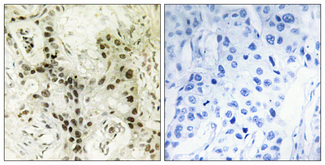 Immunohistochemistry analysis of paraffin-embedded human breast carcinoma tissue, using FOXI1 Antibody. The picture on the right is blocked with the synthesized peptide.