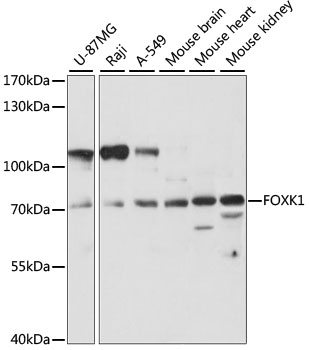 FOXK1 / MNF Antibody - Western blot analysis of extracts of various cell lines, using FOXK1 antibody at 1:1000 dilution. The secondary antibody used was an HRP Goat Anti-Rabbit IgG (H+L) at 1:10000 dilution. Lysates were loaded 25ug per lane and 3% nonfat dry milk in TBST was used for blocking. An ECL Kit was used for detection and the exposure time was 90S.