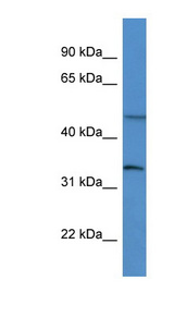 FOXL2 antibody Western blot of Rat Brain lysate. This image was taken for the unconjugated form of this product. Other forms have not been tested.