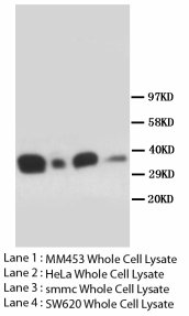 FOXL2 Antibody -  This image was taken for the unconjugated form of this product. Other forms have not been tested.