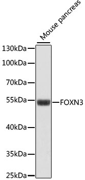 FOXN3 / CHES1 Antibody - Western blot analysis of extracts of mouse pancreas, using FOXN3 antibody at 1:1000 dilution. The secondary antibody used was an HRP Goat Anti-Rabbit IgG (H+L) at 1:10000 dilution. Lysates were loaded 25ug per lane and 3% nonfat dry milk in TBST was used for blocking. An ECL Kit was used for detection and the exposure time was 90s.