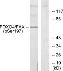Western blot analysis of lysates from 293 cells treated with serum, using AFX (Phospho-Ser197) Antibody. The lane on the right is blocked with the phospho peptide.