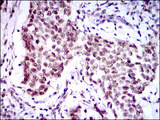 IHC of paraffin-embedded breast cancer tissues using FOXP1 mouse monoclonal antibody with DAB staining.